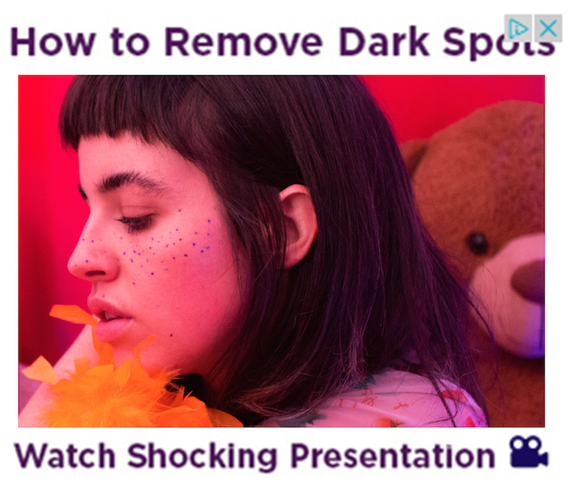 """How To Remove Dark Spots"" by Molly Soda"